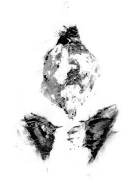 Remnant, 22Mos 3 Days, (c) Victoria Heilweil